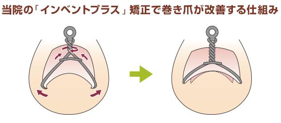 当院の「インベントプラス」矯正で巻き爪が改善する仕組み