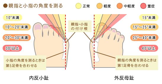 外反母趾 治療