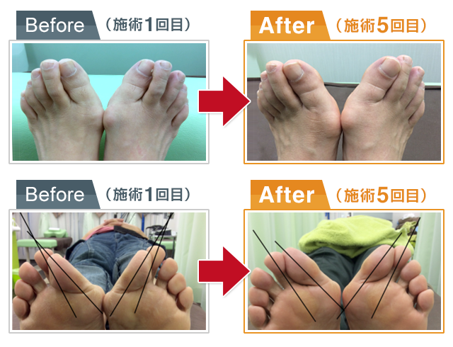 beforeafter2 施術1回目と5回目