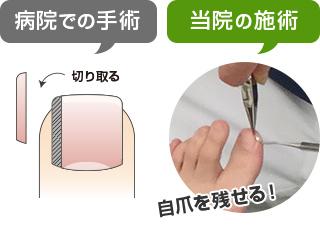 当院の施術は自爪を残せる