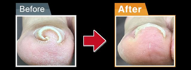 巻き爪施術前と施術後の写真
